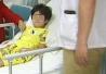 4岁女童误吞高磁球 严重肠穿孔险丧命