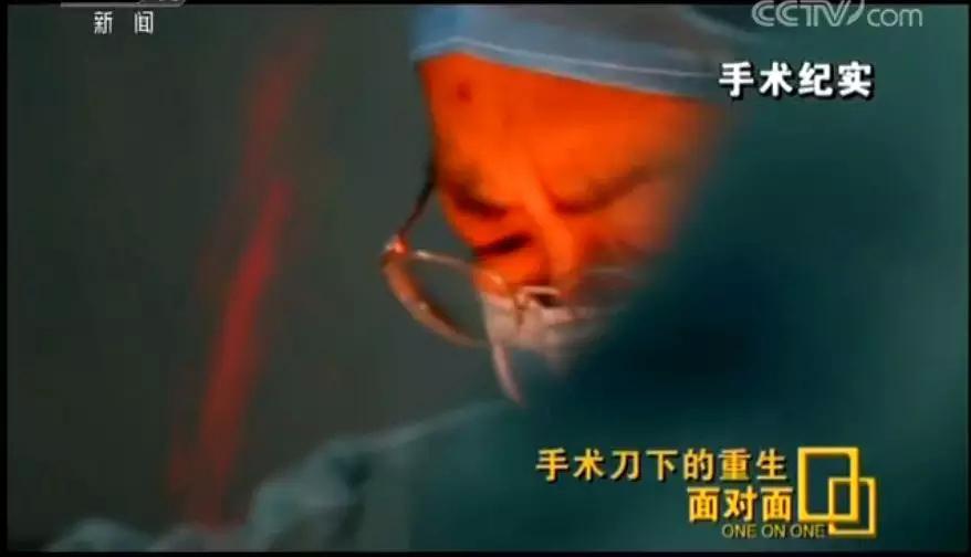 急速赛车8码必中:惊心动魄!11位医生、8小时接力,从女孩颅内取出芒果样肿瘤
