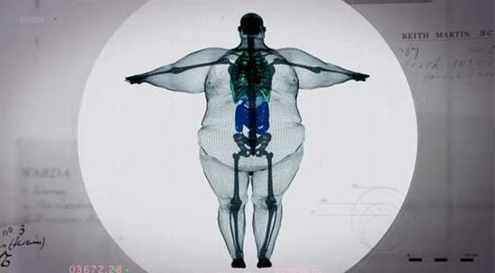一个890斤胖子的X光照片:让你看傻眼