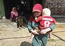 印尼村落的白化病人
