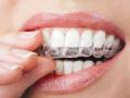 带牙箍要远离口香糖 速效箍牙就是真牙换假牙?