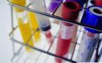 高危需慎重!感染幽门螺杆菌或可致血脂异常