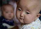 双胞胎同患白血病